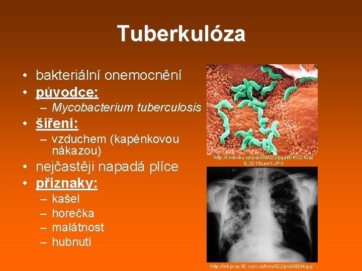 Tuberkulóza • bakteriální onemocnění • původce: – Mycobacterium tuberculosis • šíření: – vzduchem (kapénkovou