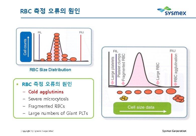 RBC 측정 오류의 원인 RBC Size Distribution § RBC 측정 오류의 원인 – Cold