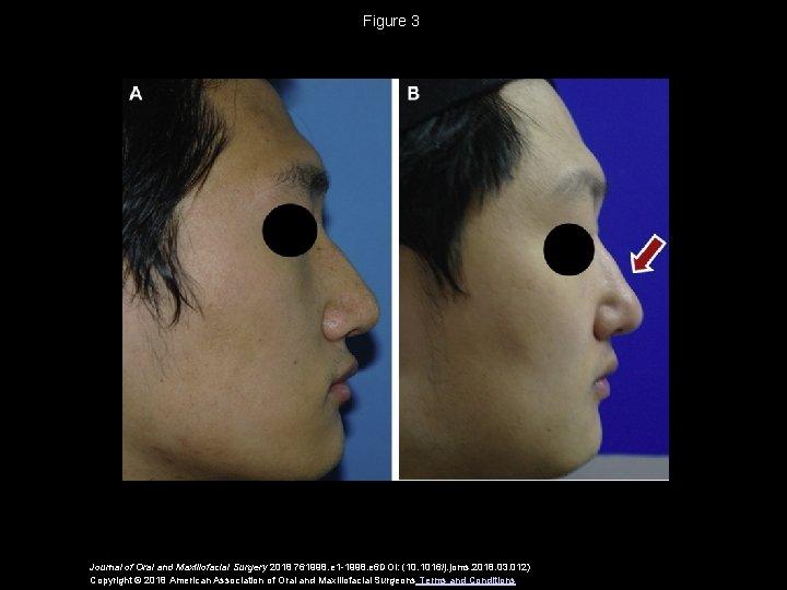 Figure 3 Journal of Oral and Maxillofacial Surgery 2018 761998. e 1 -1998. e