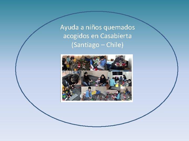 Ayuda a niños quemados acogidos en Casabierta (Santiago – Chile)