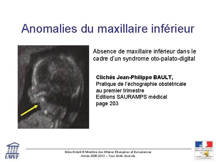 Anomalies du maxillaire inférieur Absence de maxillaire inférieur dans le cadre d'un syndrome oto-palato-digital