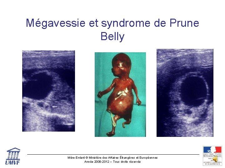 Mégavessie et syndrome de Prune Belly Mère-Enfant © Ministère des Affaires Étrangères et Européennes