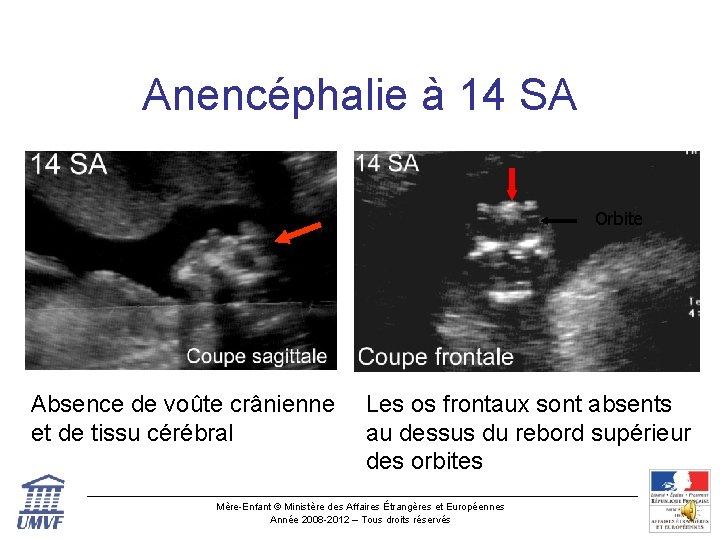 Anencéphalie à 14 SA Orbite Absence de voûte crânienne et de tissu cérébral Les