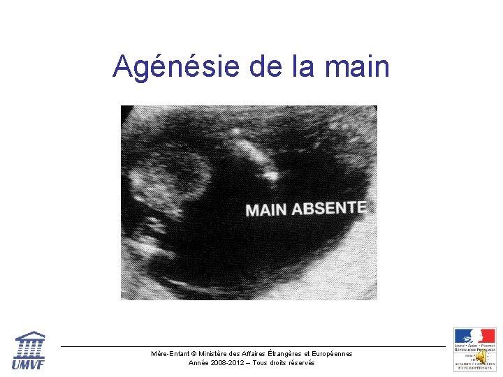Agénésie de la main Mère-Enfant © Ministère des Affaires Étrangères et Européennes Année 2008