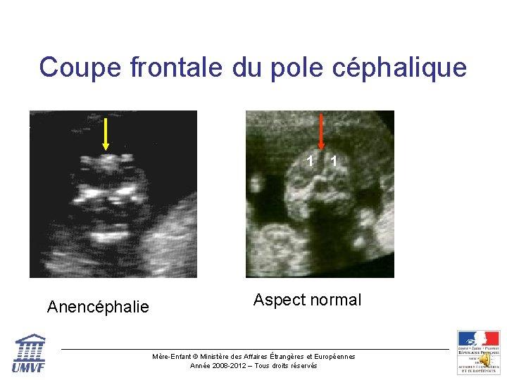 Coupe frontale du pole céphalique 1 Anencéphalie 1 Aspect normal Mère-Enfant © Ministère des