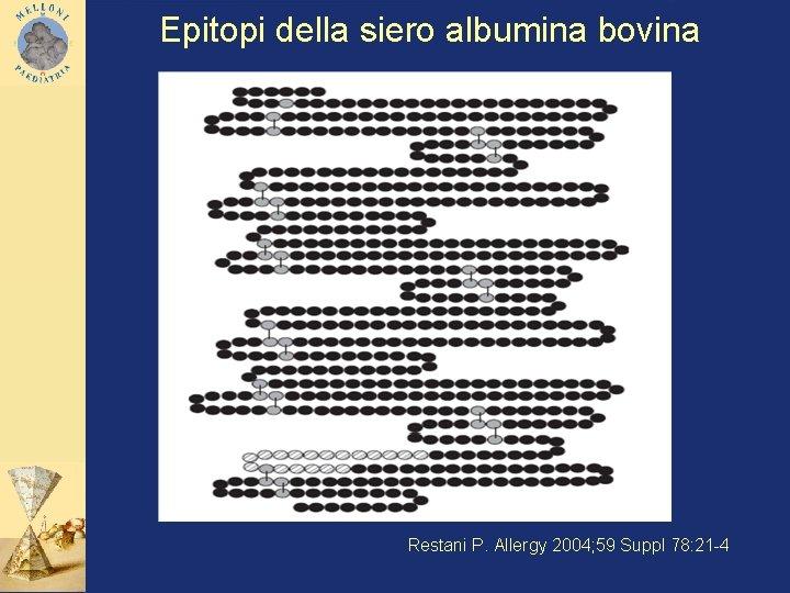 Epitopi della siero albumina bovina Restani P. Allergy 2004; 59 Suppl 78: 21 -4