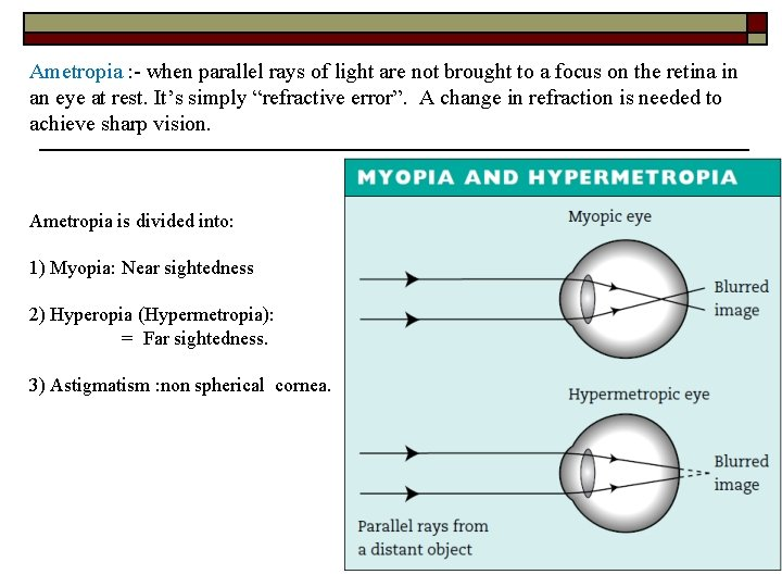 myopia 2 hyperopia)