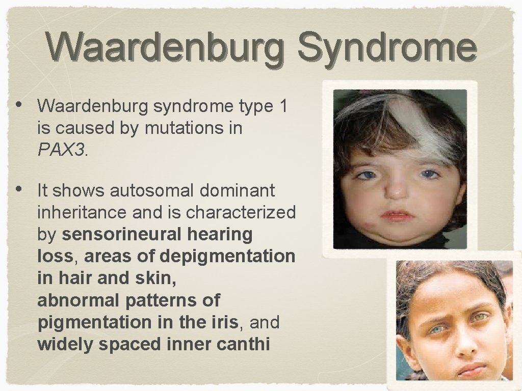 Waardenburg Syndrome • Waardenburg syndrome type 1 is caused by mutations in PAX 3.