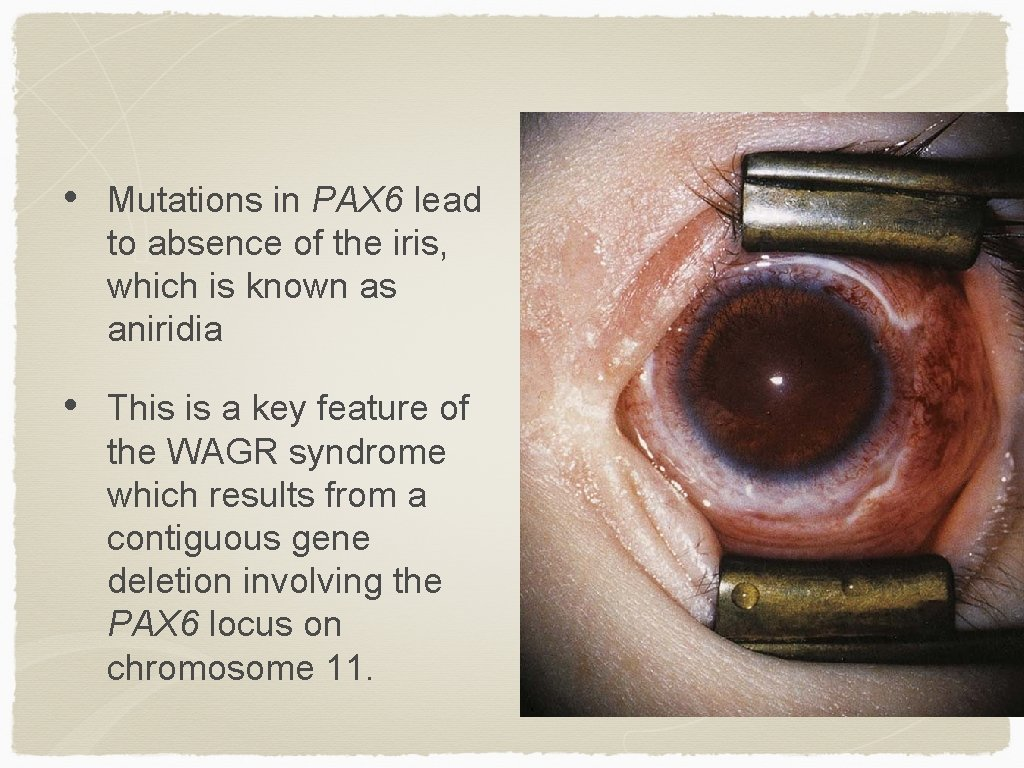 • Mutations in PAX 6 lead to absence of the iris, which is