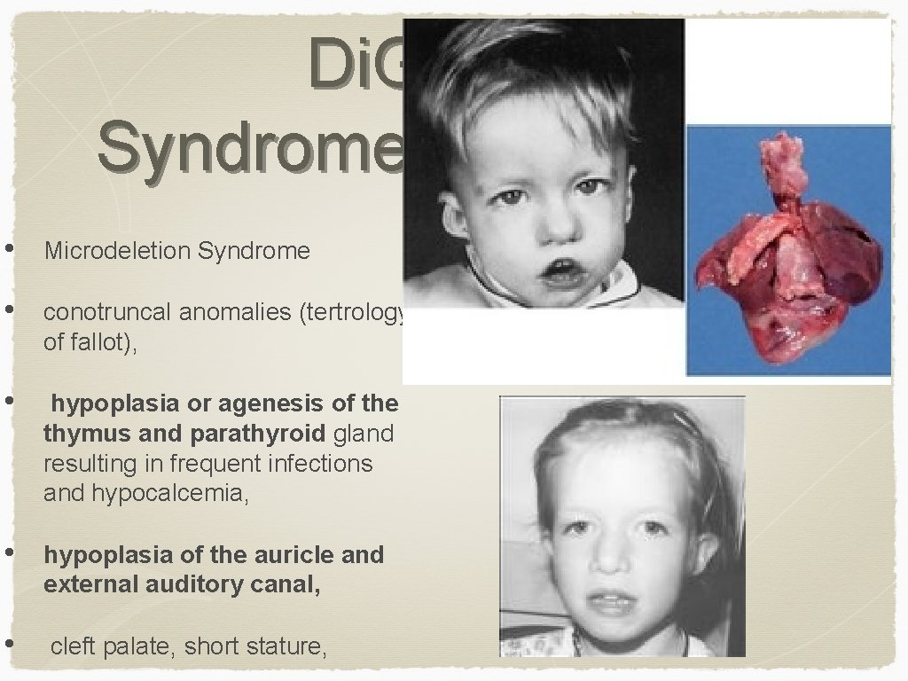 Di. George Syndrome • Microdeletion Syndrome • conotruncal anomalies (tertrology of fallot), • hypoplasia