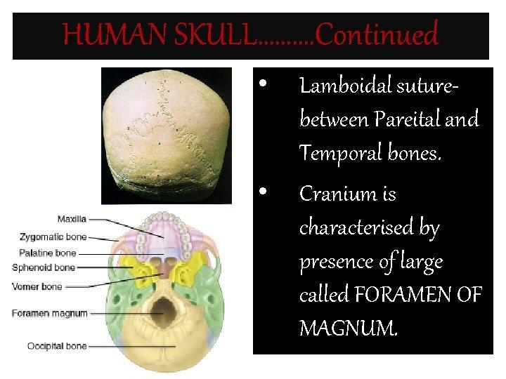 HUMAN SKULL………. Continued • • Lamboidal suturebetween Pareital and Temporal bones. Cranium is characterised