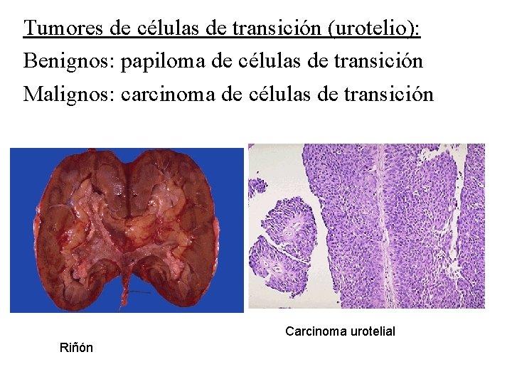 ceea ce distinge papilomul de negi vaccine of papillomavirus