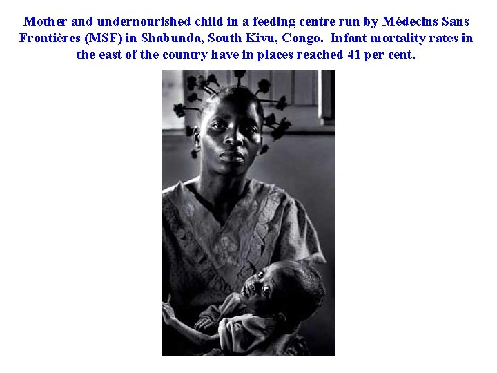 Mother and undernourished child in a feeding centre run by Médecins Sans Frontières (MSF)