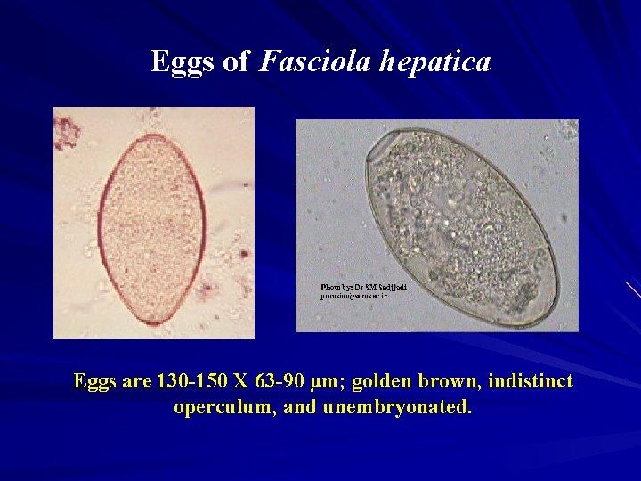 fascioliasis tézis a legfontosabb a rossz lehelet