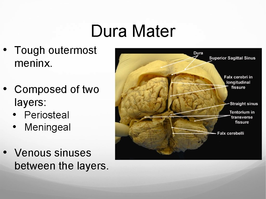Dura Mater • Tough outermost meninx. • Composed of two layers: • Periosteal •