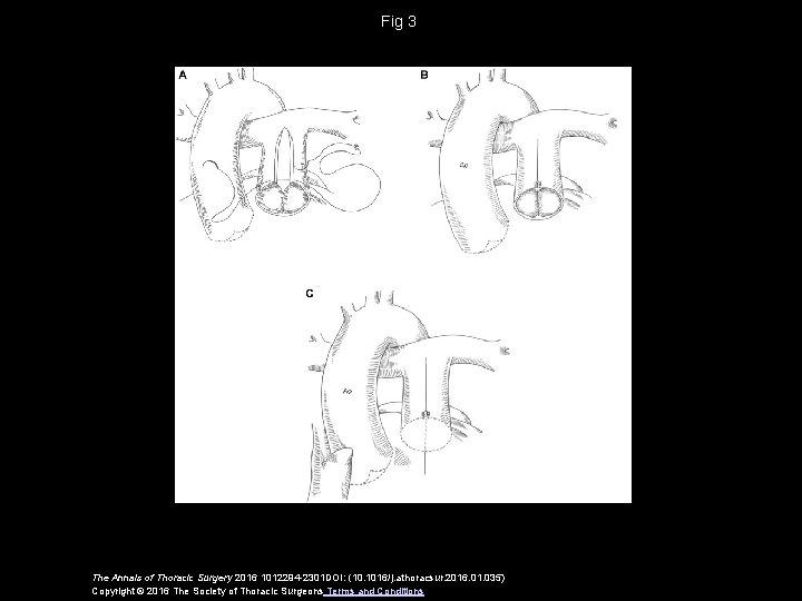 Fig 3 The Annals of Thoracic Surgery 2016 1012294 -2301 DOI: (10. 1016/j. athoracsur.