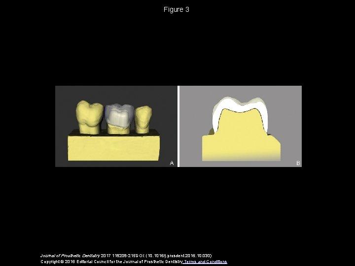 Figure 3 Journal of Prosthetic Dentistry 2017 118208 -215 DOI: (10. 1016/j. prosdent. 2016.