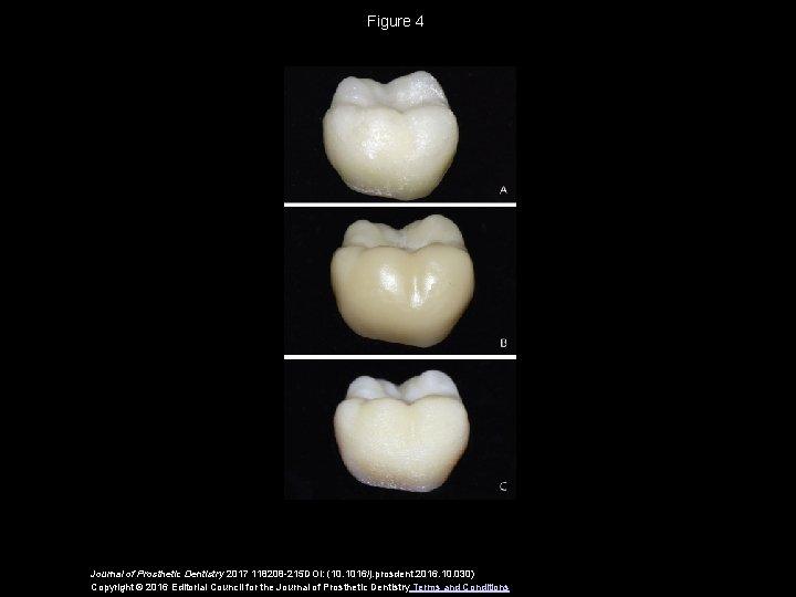 Figure 4 Journal of Prosthetic Dentistry 2017 118208 -215 DOI: (10. 1016/j. prosdent. 2016.