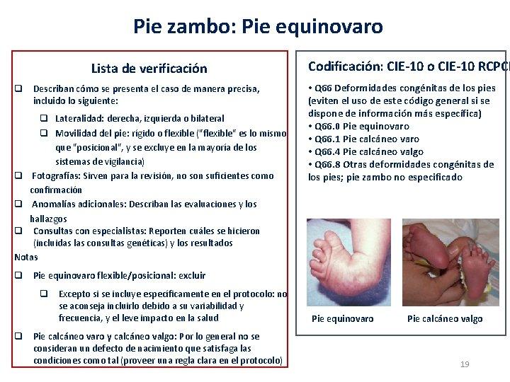 Pie zambo: Pie equinovaro Lista de verificación q Describan cómo se presenta el caso