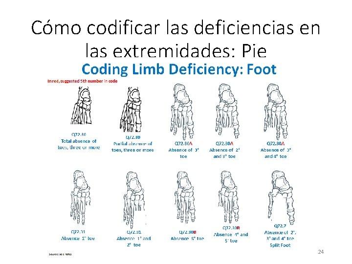 Cómo codificar las deficiencias en las extremidades: Pie 24