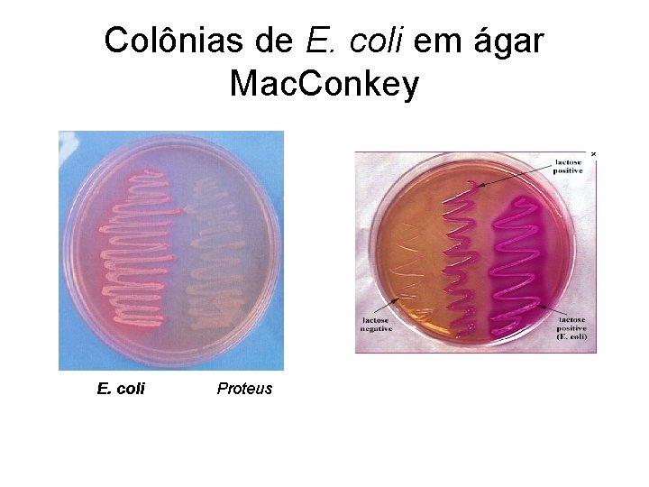 Colônias de E. coli em ágar Mac. Conkey E. coli Proteus