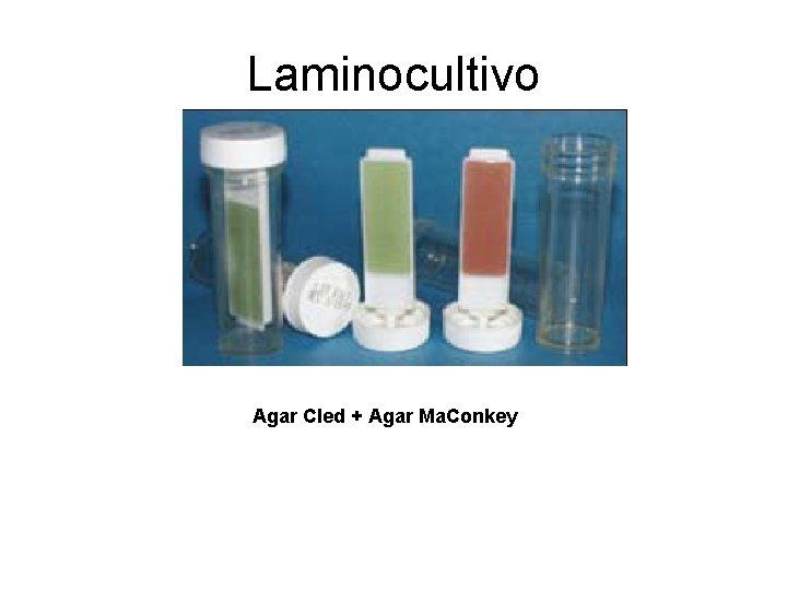 Laminocultivo Agar Cled + Agar Ma. Conkey