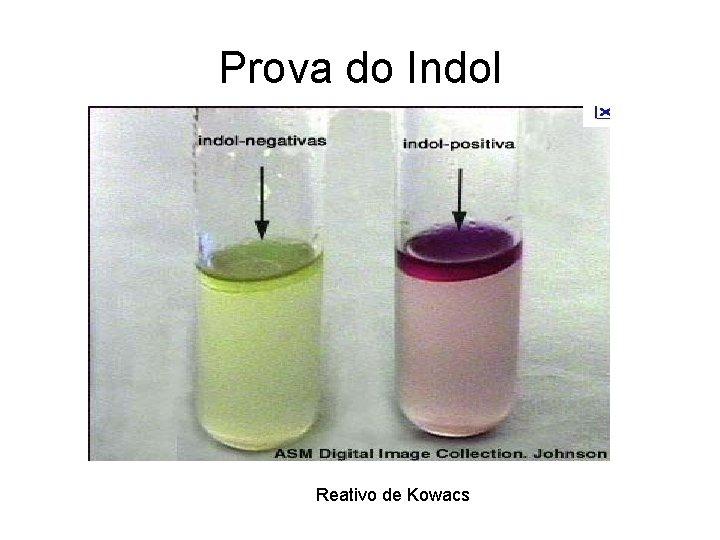 Prova do Indol Reativo de Kowacs