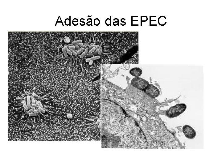 Adesão das EPEC