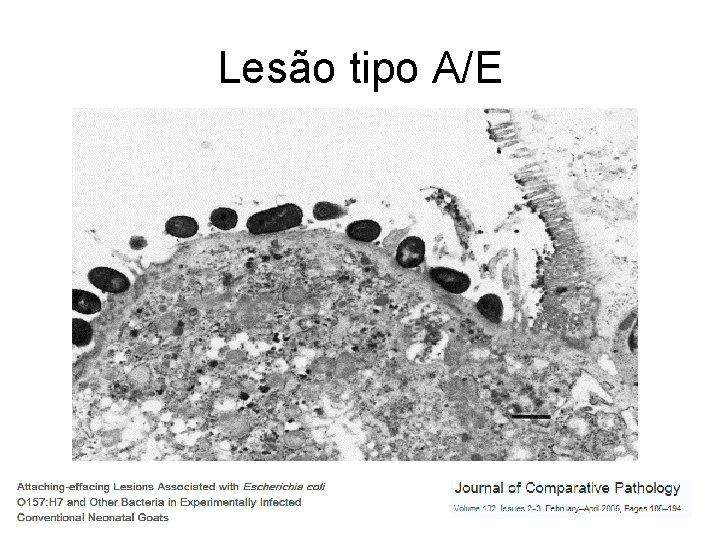 Lesão tipo A/E
