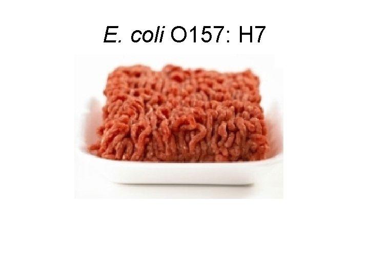 E. coli O 157: H 7
