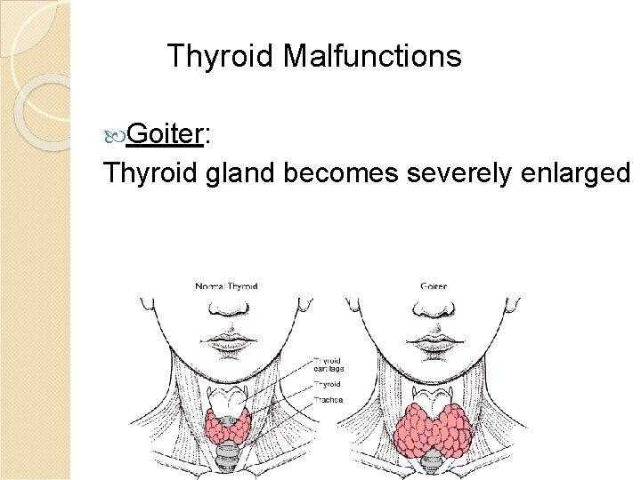 Thyroid Malfunctions Goiter: Thyroid gland becomes severely enlarged