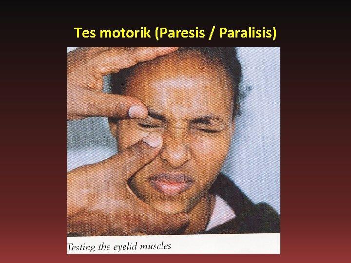Tes motorik (Paresis / Paralisis)