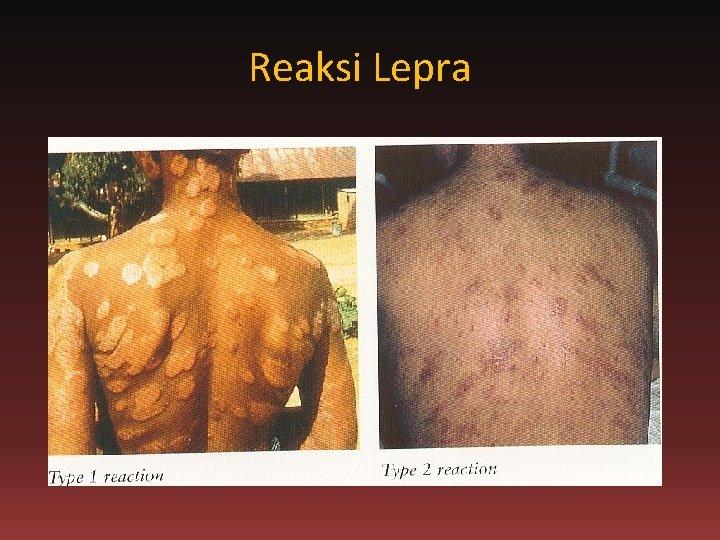 Reaksi Lepra