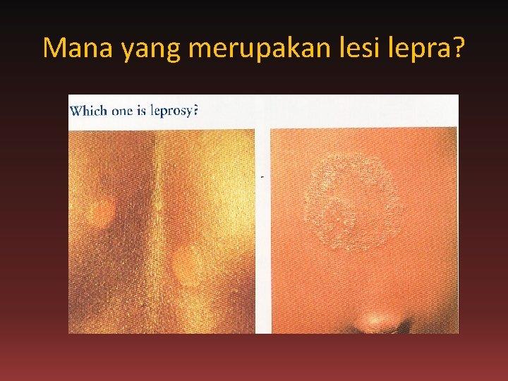 Mana yang merupakan lesi lepra?