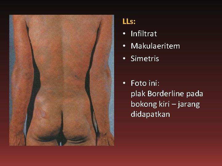 LLs: • Infiltrat • Makulaeritem • Simetris • Foto ini: plak Borderline pada bokong
