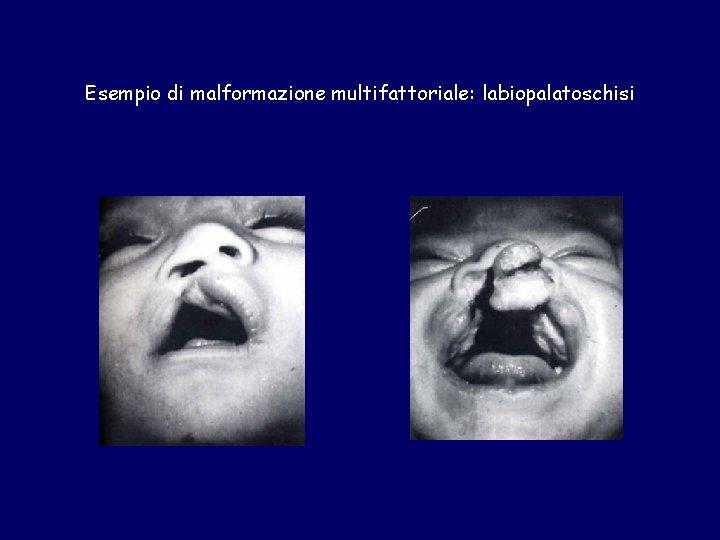 Esempio di malformazione multifattoriale: labiopalatoschisi
