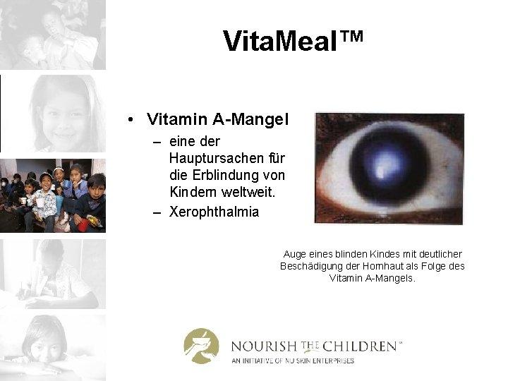 Vita. Meal™ • Vitamin A-Mangel – eine der Hauptursachen für die Erblindung von Kindern