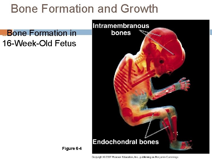 Bone Formation and Growth Bone Formation in 16 -Week-Old Fetus Figure 6 -4