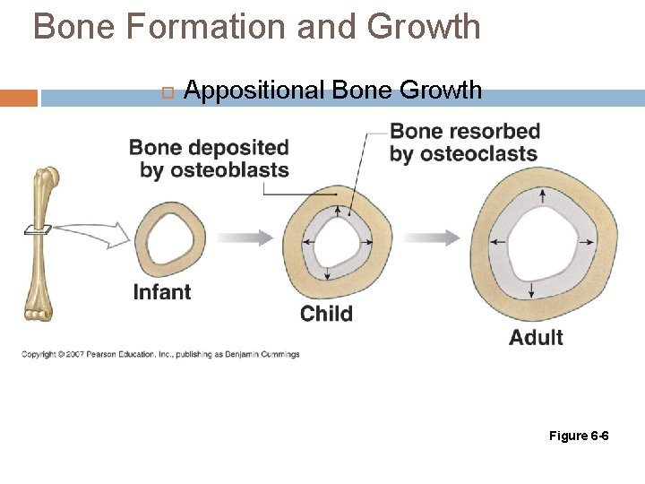 Bone Formation and Growth Appositional Bone Growth Figure 6 -6