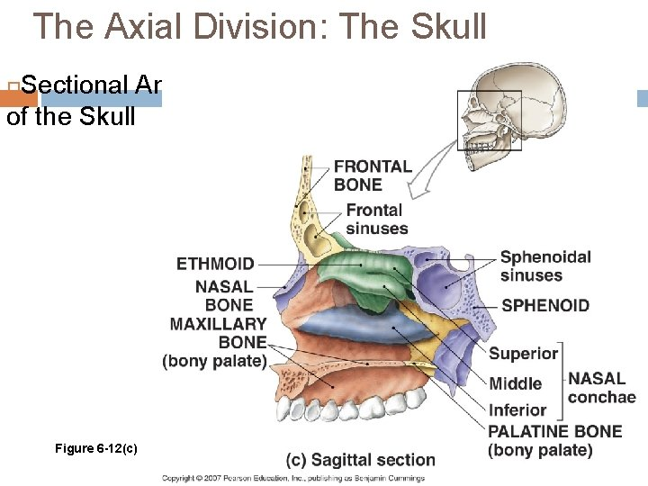 The Axial Division: The Skull Sectional Anatomy of the Skull Figure 6 -12(c)