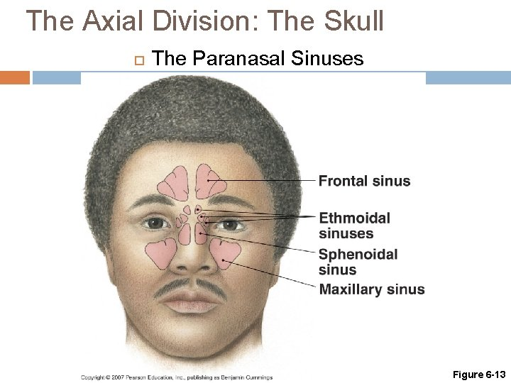 The Axial Division: The Skull The Paranasal Sinuses Figure 6 -13