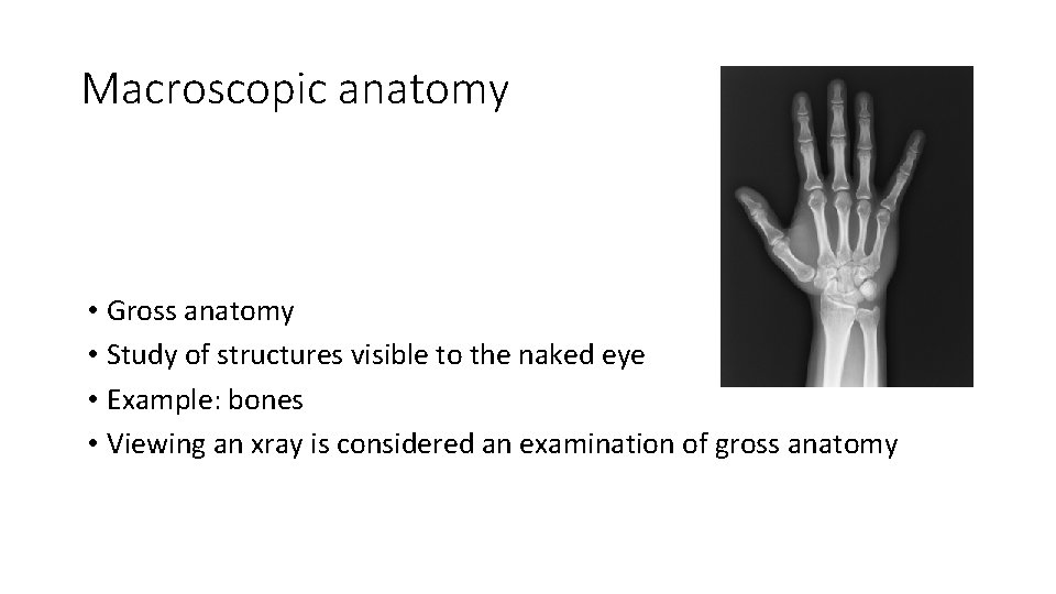 Macroscopic anatomy • Gross anatomy • Study of structures visible to the naked eye