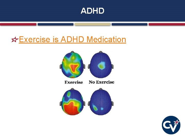 ADHD Exercise is ADHD Medication