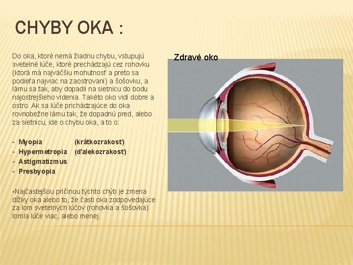 a myopia oka