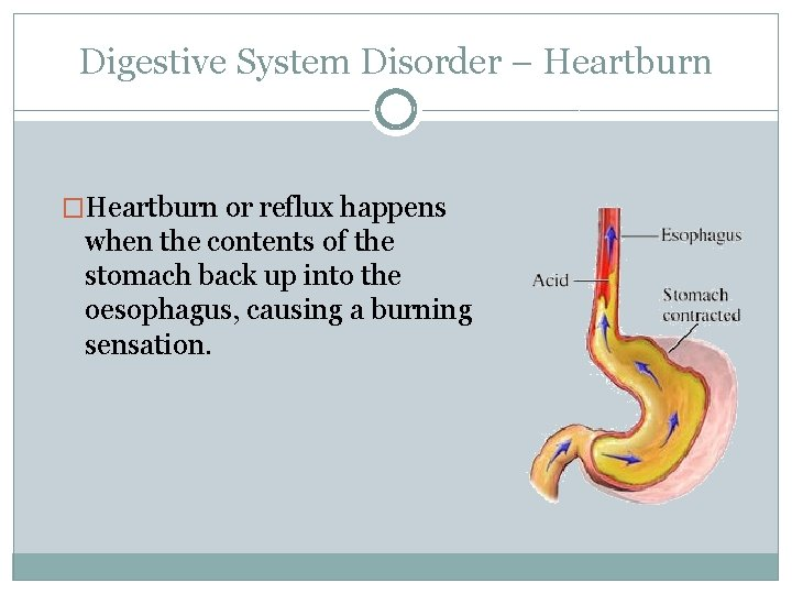 Digestive System Disorder – Heartburn �Heartburn or reflux happens when the contents of the