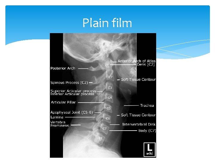 Plain film