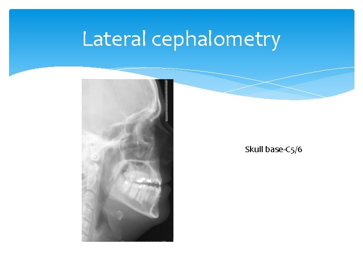 Lateral cephalometry Skull base-C 5/6