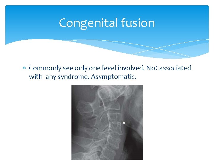 Congenital fusion Commonly see only one level involved. Not associated with any syndrome. Asymptomatic.