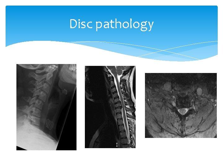 Disc pathology