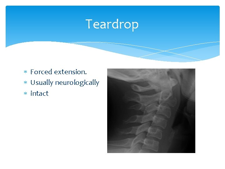 Teardrop Forced extension. Usually neurologically intact